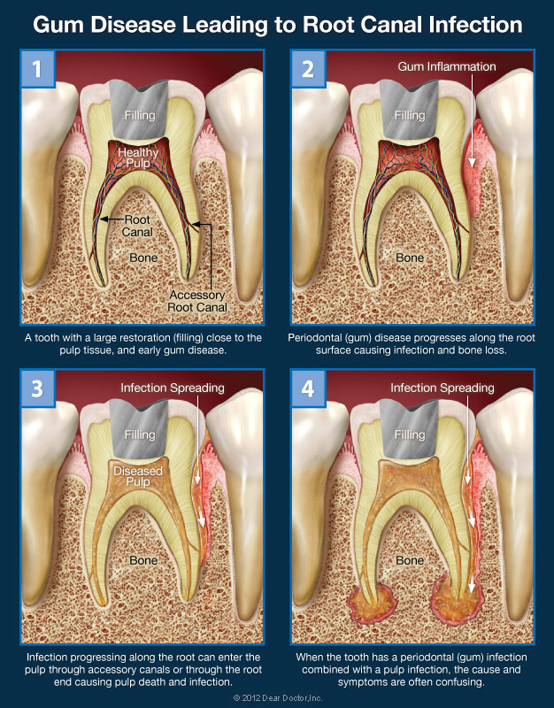 Gum Disease Leading To Infection - Root Canals Spring, TX