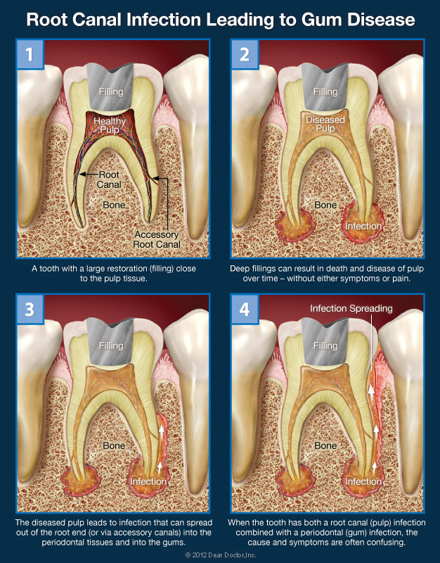 Dental Root Infection - Large Filling Leading to Gum Disease