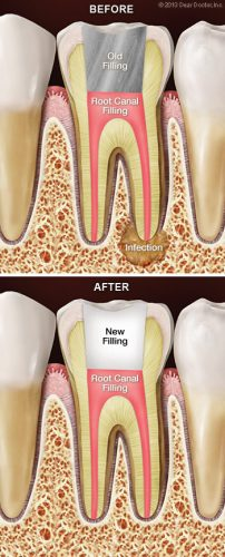 Root Canal Therapy - Root Canal Retreatment