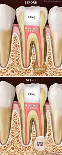 Root Canal Surgery - Bone Grafting Procedure