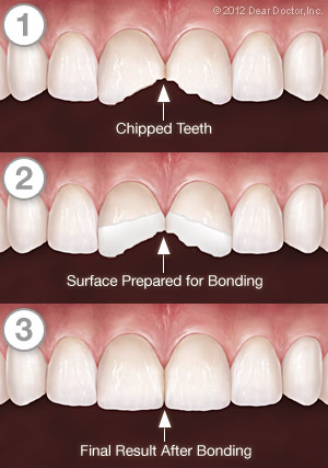 Cracked Teeth Repaired By Bonding